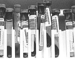 Cómo utilizar mejor el próximo análisis de sangre de su perro