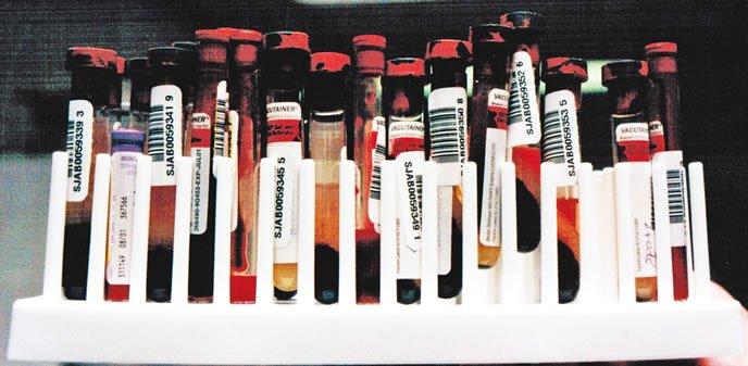 Valores comunes en un análisis de sangre canina